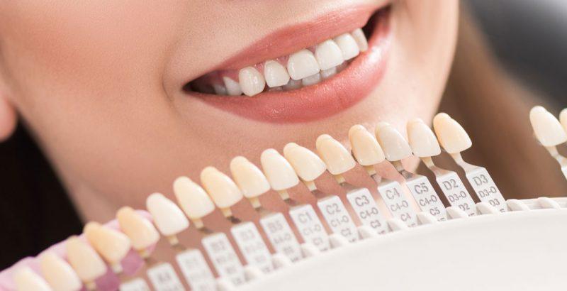 Dental Treatment Bridges