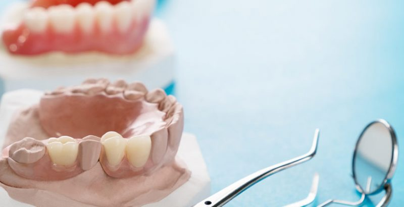 Dental Treatment Full-and-partial-dentures