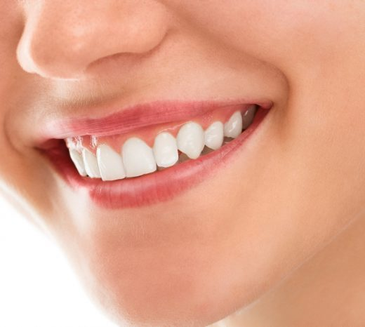 Dental Treatment Tooth Coloured Fillings