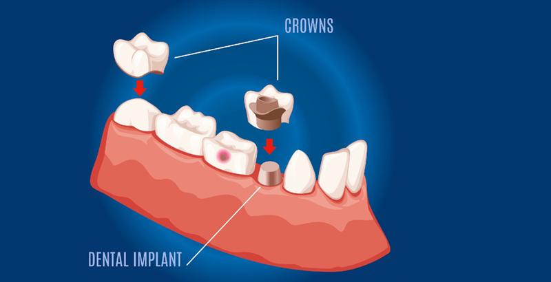 Dental_Crown_Defn